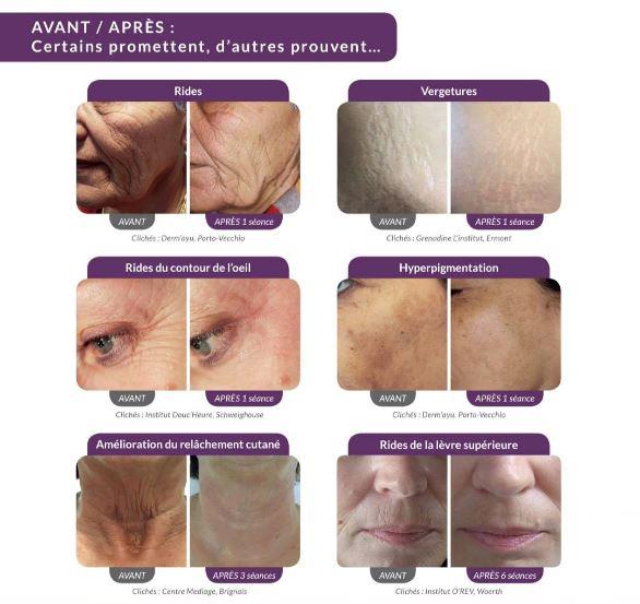 Résultats-avant_après-ACS-PEN-Stimulation-Cellulaire-Avancée-beauté-domicile v2